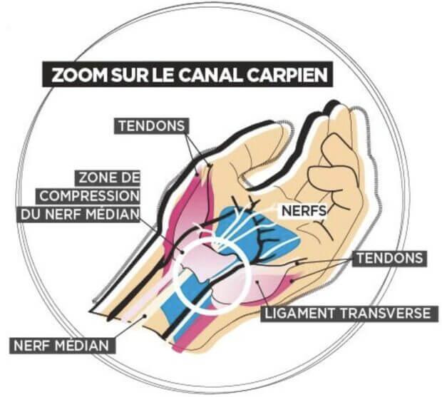 Explication canal carpien
