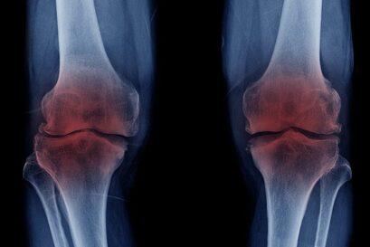 Arthrose des genoux
