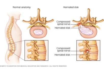 Compression nerf sciatique