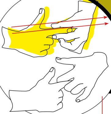 Douleurs de doigts